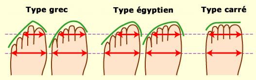 formes_de_pieds